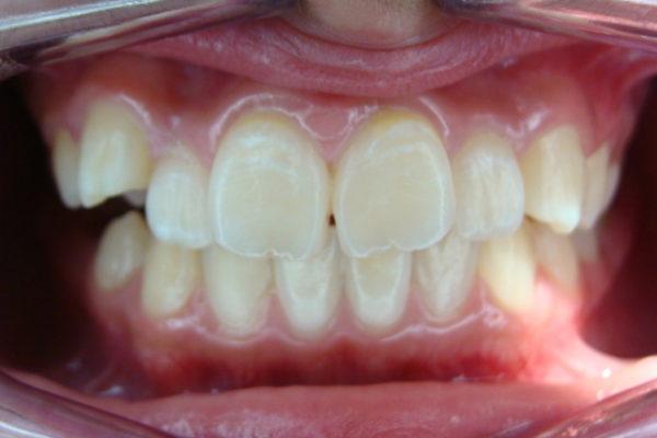 上の歯の叢生(ガタガタ)