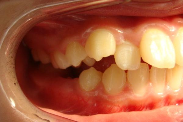 上の歯の叢生(ガタガタ)2
